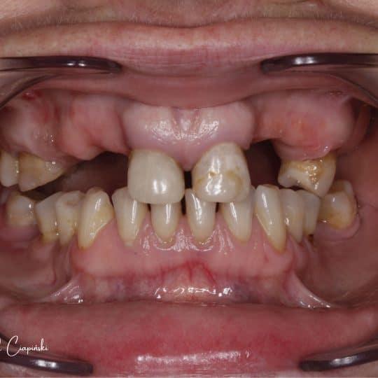 zdjęcie uzębienia pacjenta przed zabiegiem metamorfozy stomatologicznej