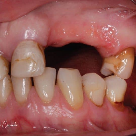 zdjęcie zębów przed zabiegiem w dentrum