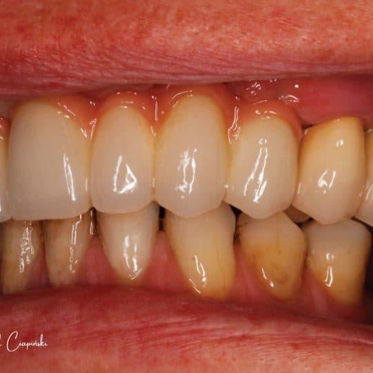 zdjęcie zębów po wykonaniu zabiegu metamorfozy w dentrum
