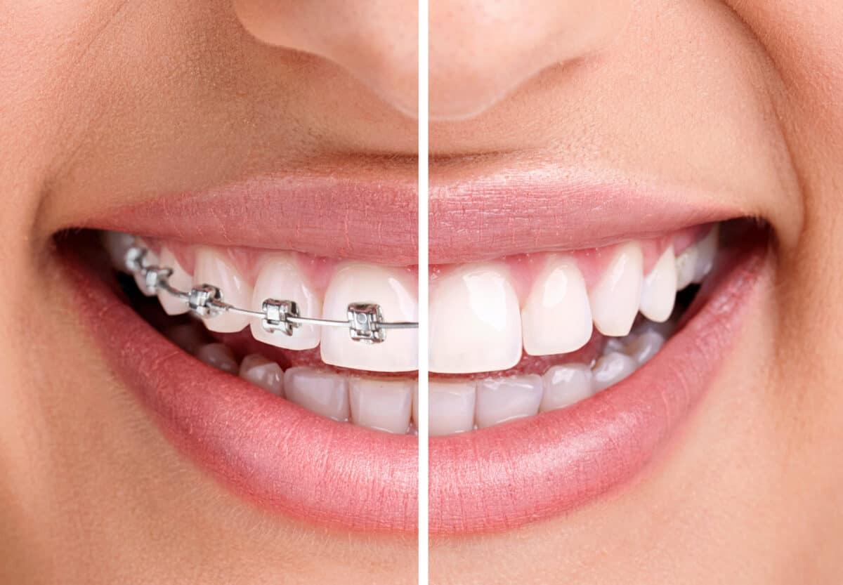 Aparat-ortodontyczny-1200x833.jpg