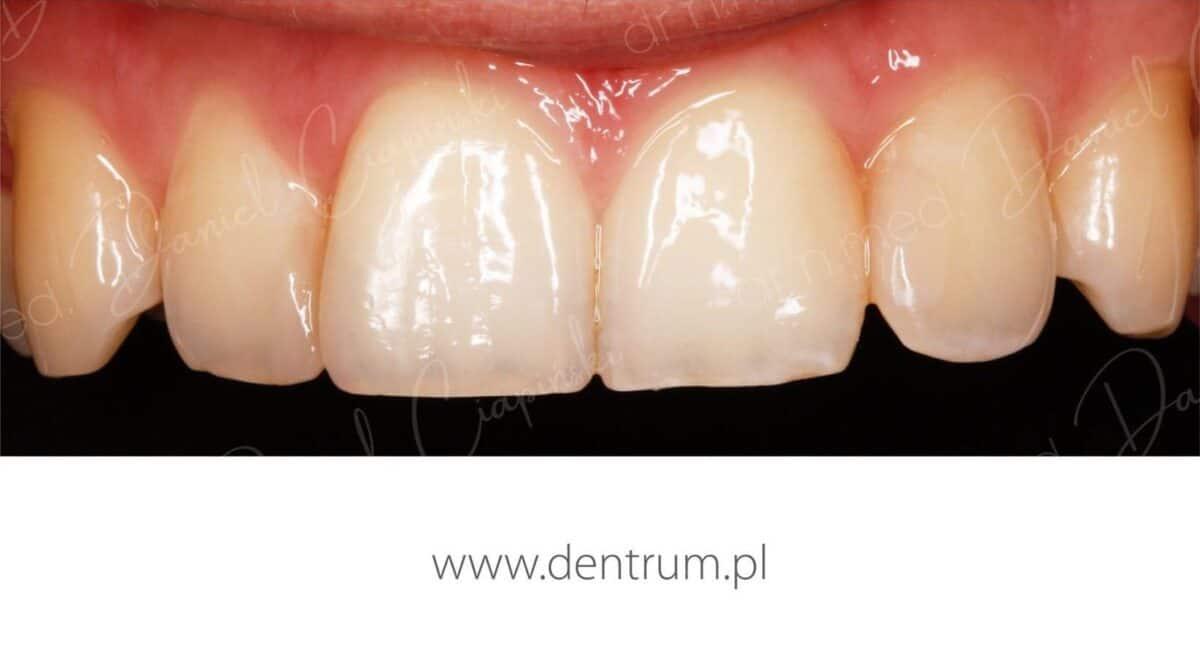 Poprawa-usmiechu-po-1200x658.jpg