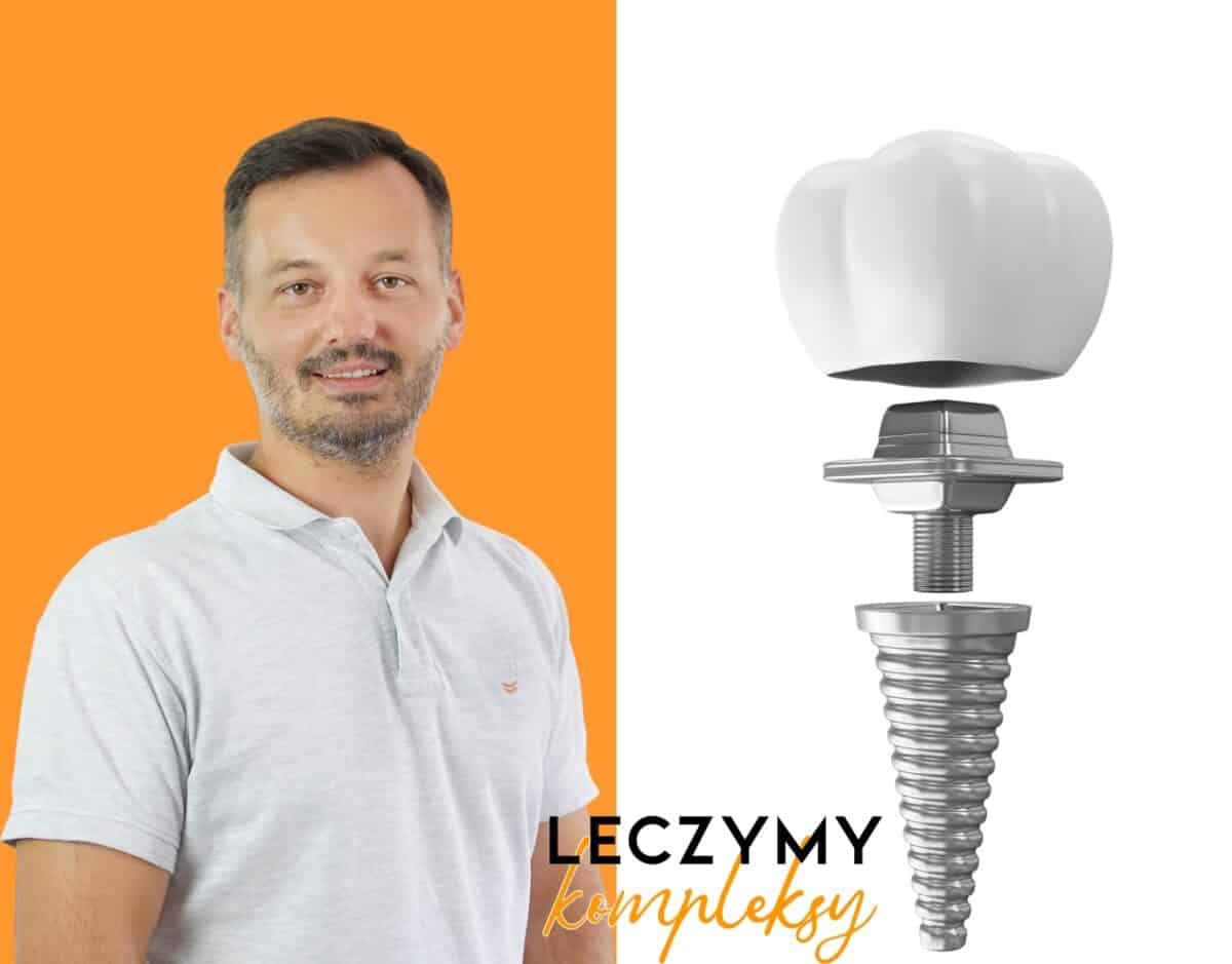 dr-ciapinski-implanty-1200x939.jpg