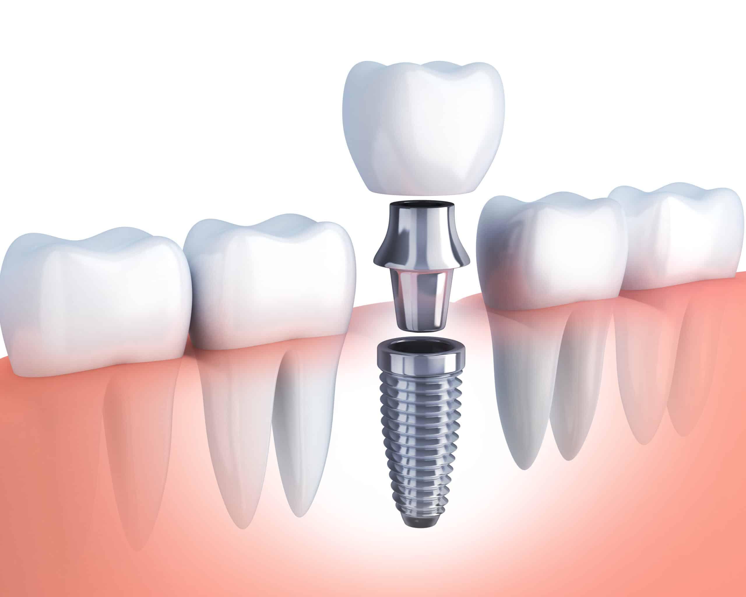 https://dentrum.pl/wp-content/uploads/implantologia-1-scaled.jpg
