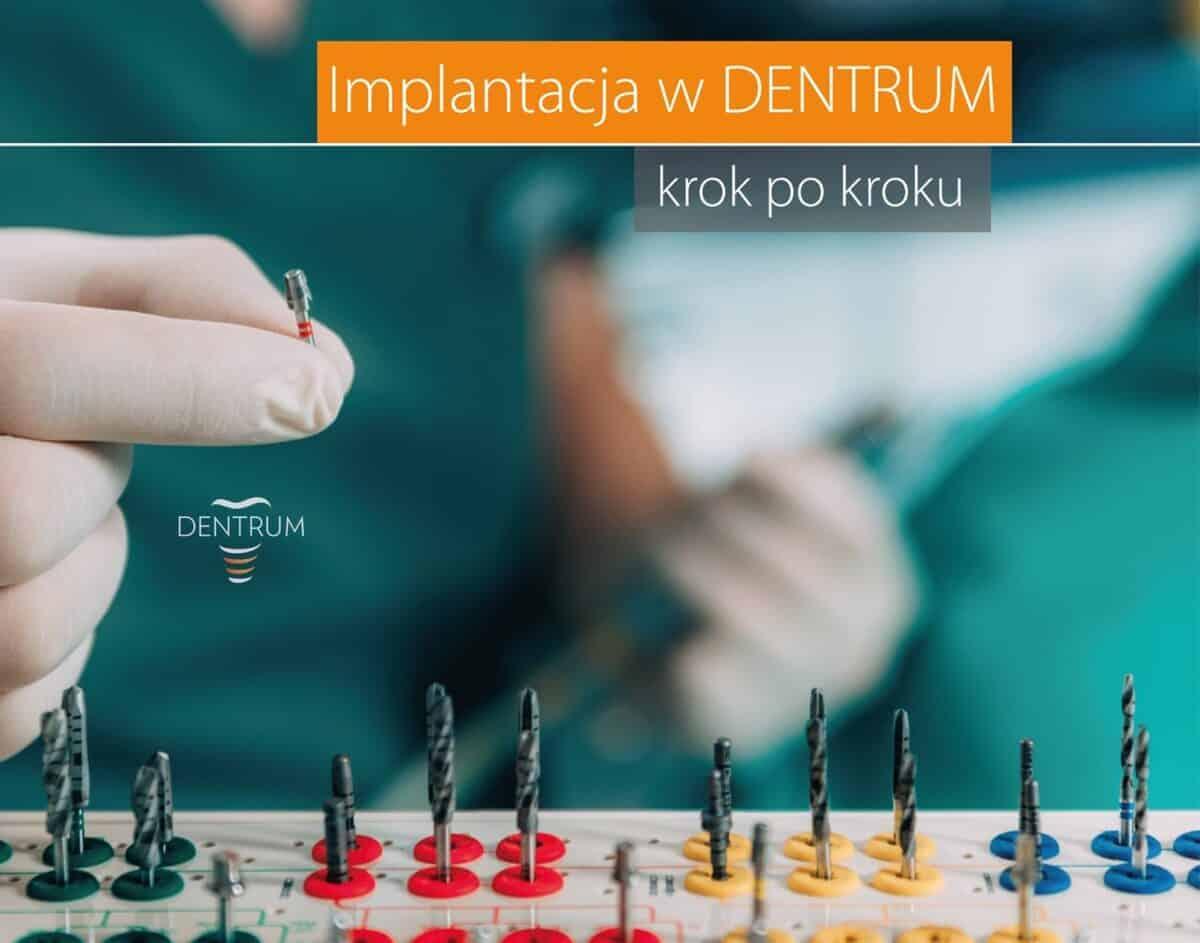 implanty-2-1200x943.jpg