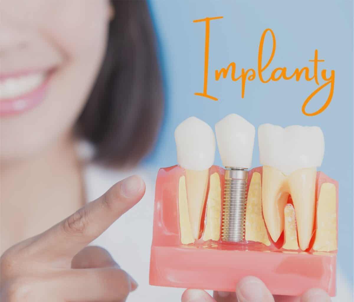 jJk-dbać-o-implanty-1200x1024.jpg