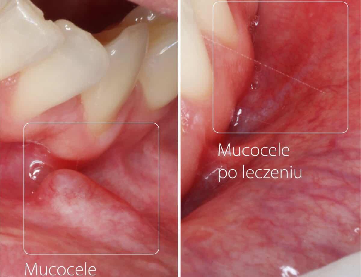 mucocele-1200x920.jpg