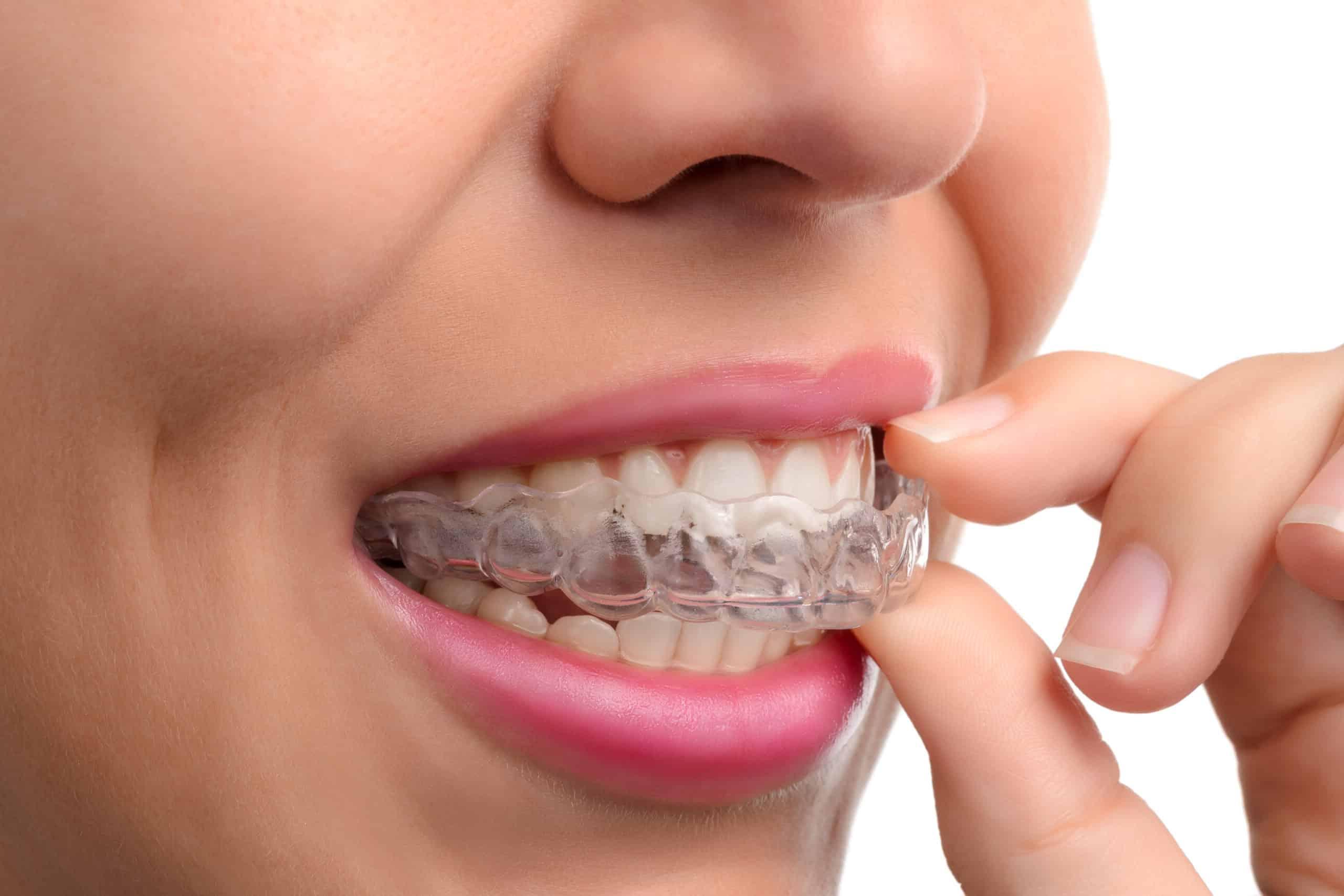 https://dentrum.pl/wp-content/uploads/ortodoncja-3-scaled-e1592448074779.jpg