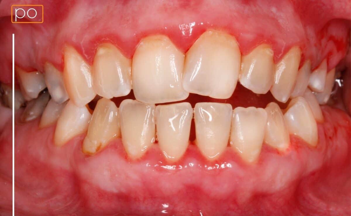 po-higienizacji-1200x740.jpg