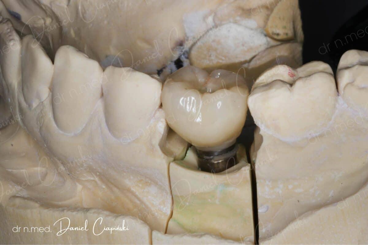 wstawienie-zęba-1200x800.jpg