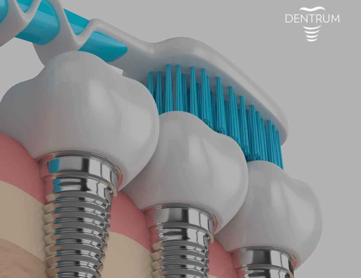żywotność-implantów-1200x924.jpg